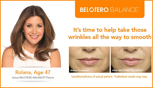 belotero-before-after-pics-faceplace