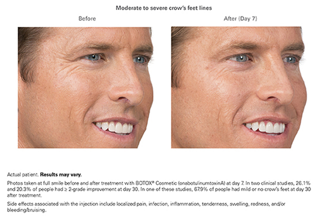 botox-before-and-after-results-new