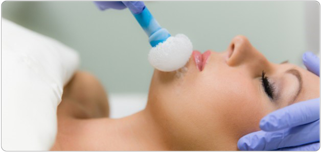 cryotherapy-service