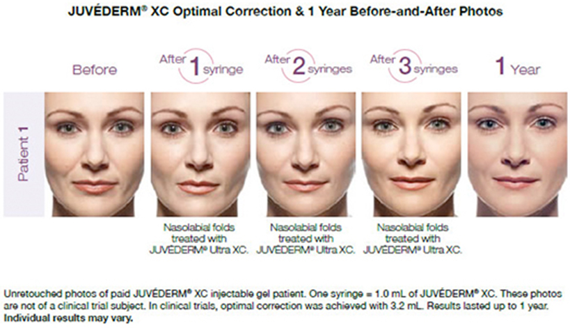 juvederm-before-and-after-service