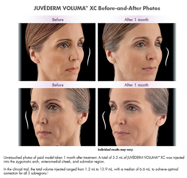 juvederm-voluma-before-and-after-face-place