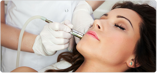 microdermabrasion-service-faceplace-knoxville
